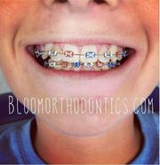 Perfect Invisalign Treatment in Long Beach