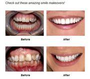 Get Dental Veneers Service at a Reasonable Price from Porcelain Veneer